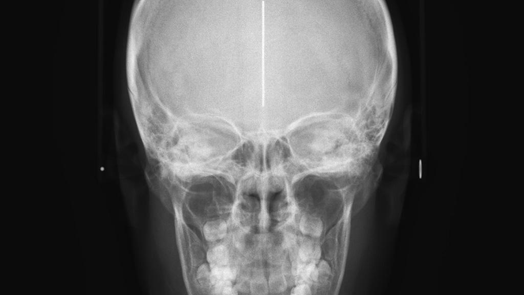 Телерентгенограмма (ТРГ)